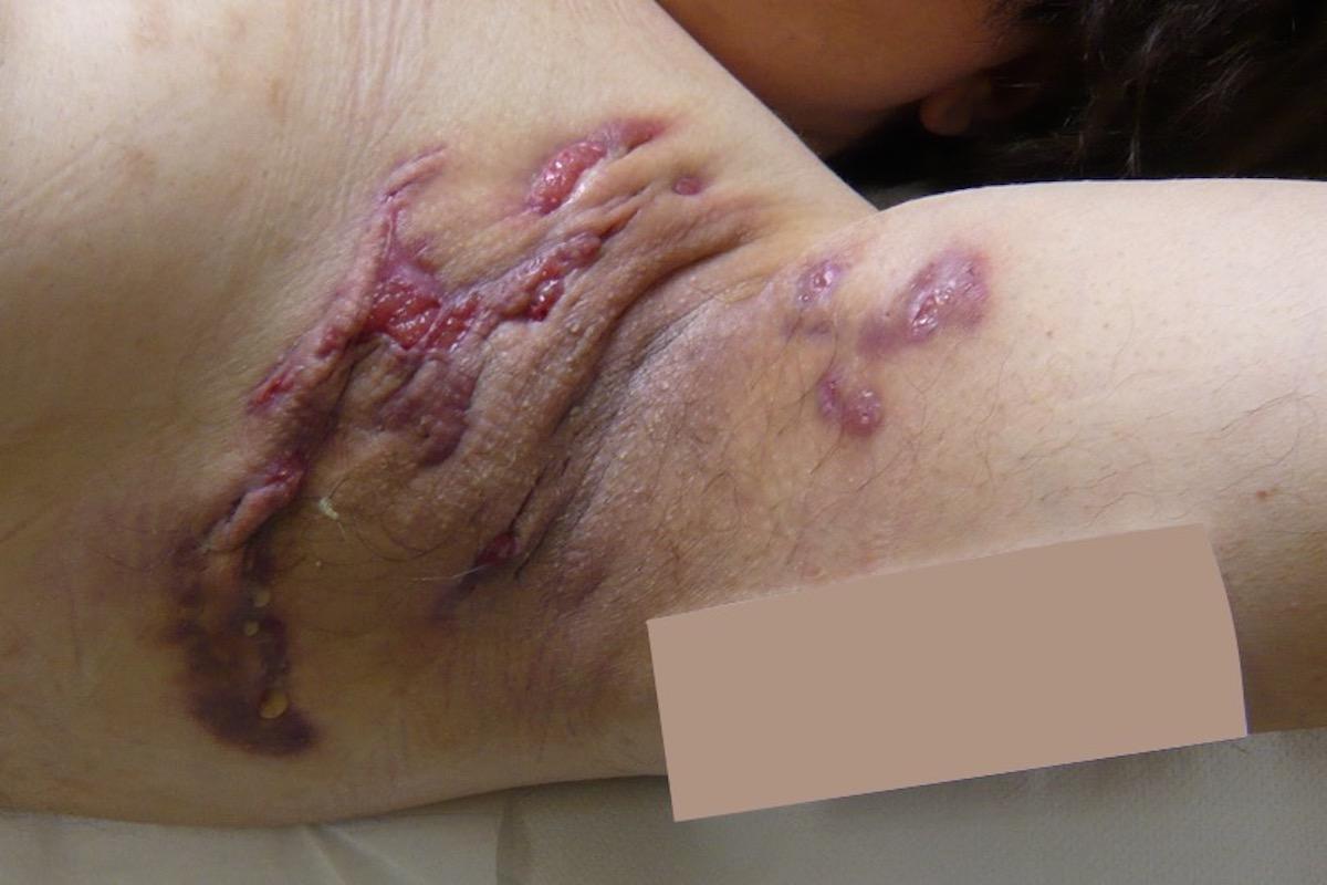 Akne inversa | Hidradenitis suppurativa | LAight Therapie