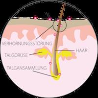 Hyperkeratose